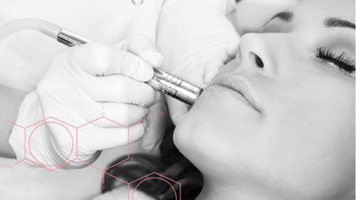 Microdermabrasion-small