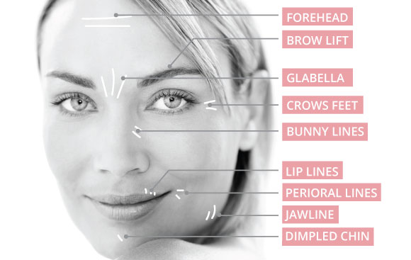 Anti-Wrinkle-Injections