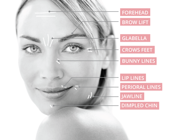 Anti-Wrinkle-Injections---Areas