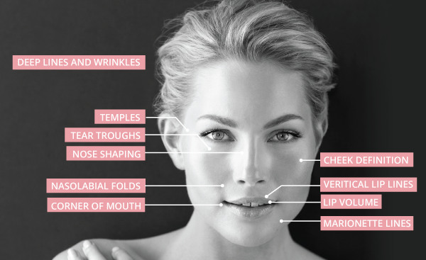 Dermal-Fillers--Areas2